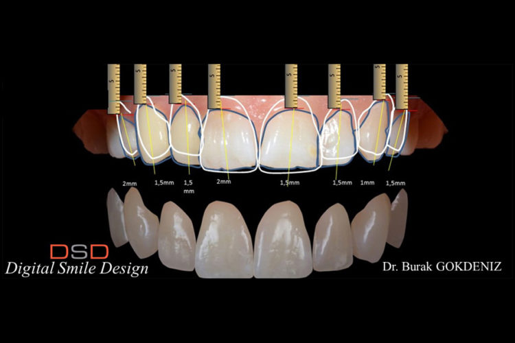 DSD | Digital Smile Design