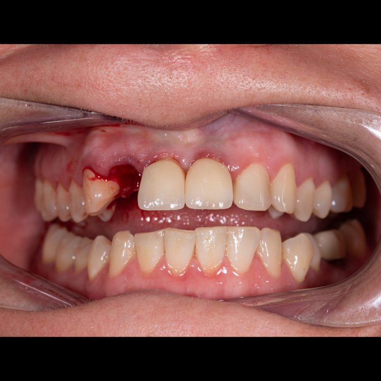 tooth extraction dubai
