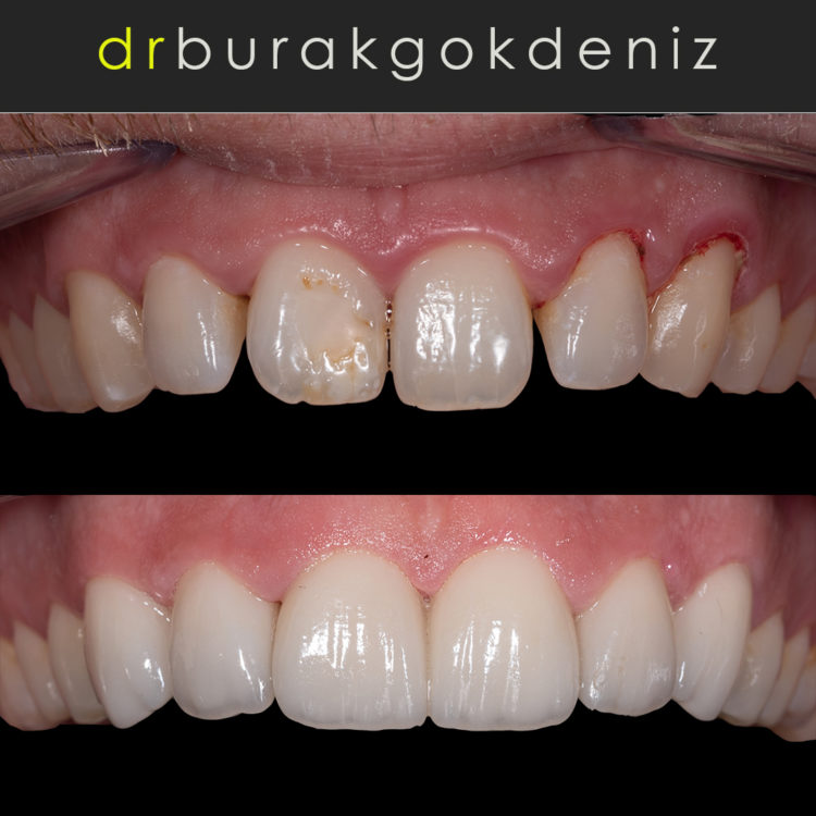 Dental Ceramic Veneers dubai