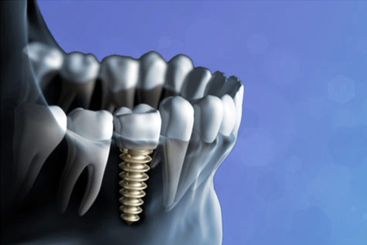 dental implant dubai